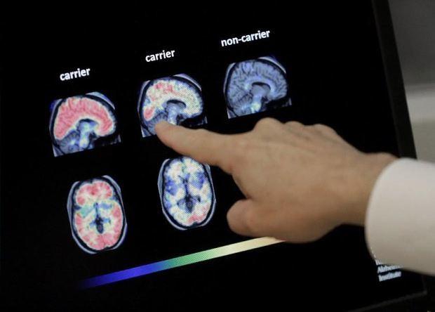 Hoy 21 de septiembre se conmemora el Día Mundial del Alzheimer