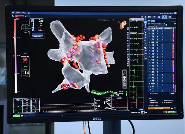 Equipo de Electrofisiología de Moderno- MCA, introducen en RD  el uso del Ecocardiograma intracardíaco