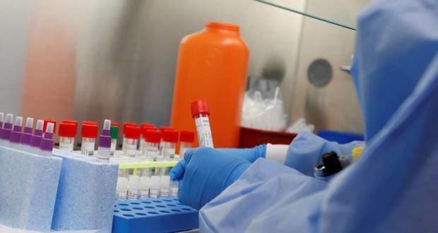 Castillo revela que el sábado llegan pruebas para diagnosticar el coronavirus.