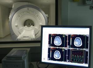 Descubren una nueva alteración en el cerebro de las personas con Alzheimer.