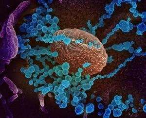 Científicos chinos descubren cómo el coronavirus se une a las células humanas.