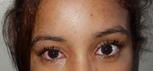 Adolescente infectada con conjuntivitis.