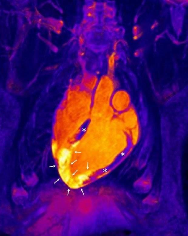 El corazón reacciona ante un infarto de una manera muy diferente a lo pensado