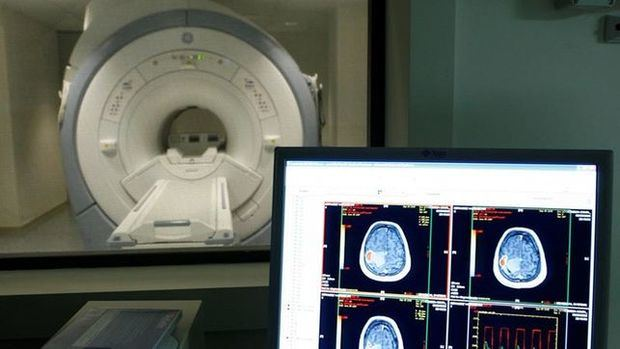 Crean nanopartículas para transportar fármacos al tumor cerebral más letal