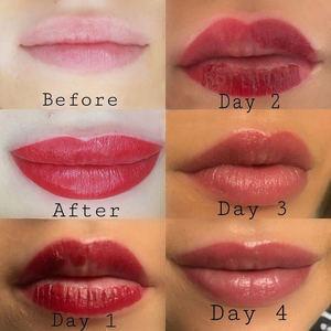 Los expertos aconsejan evitar la exposición al sol y mantener los labios más hidratados, en especial los primeros 20 días después de la aplicación del pigmento.