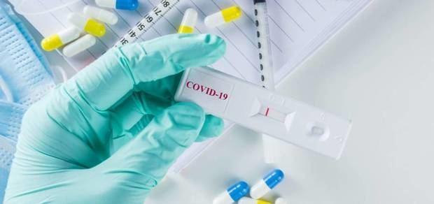 Importación y comercialización de pruebas para covid en RD deberán ser autorizadas